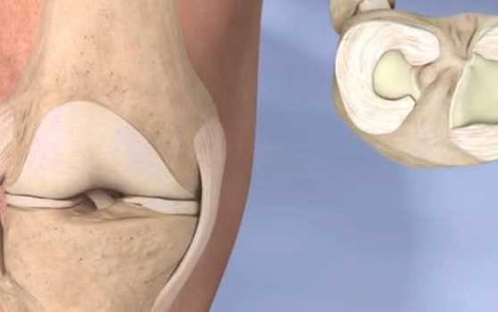The Treatment and Recovery of Meniscus Tear